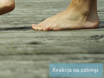 Masaż stóp Kraków - reakcja na zabiegi lecznicze